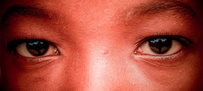Cómo tratar el acné si estas de vacaciones